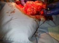Zabieg operacyjny usunięcia guza.